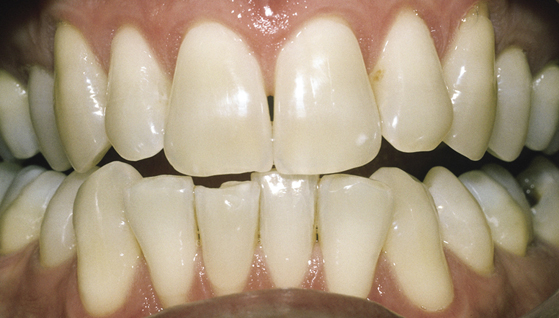 Bleaching - The Dental Practice of Lincoln Park - Chicago, IL