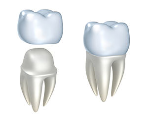 Dental Crowns in Lincoln Park, IL