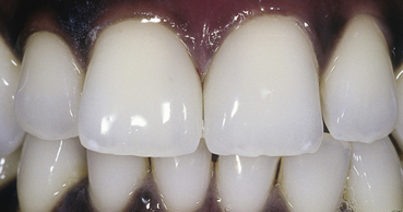 Veneers - The Dental Practice of Lincoln Park - Chicago, IL